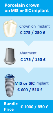 whatisdentalimplant_bundle