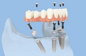 All on four denture on four implants