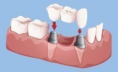 Bridge on 2 implants to replace multiple missing teeth