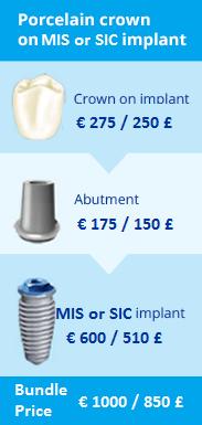 whatisdentalimplant_bundle