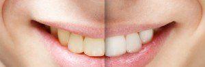Teeth whitening in Greece