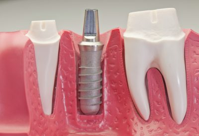 Dental Implants in Greece